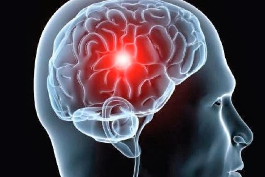 Stroke: 80% of cases can be prevented. How to quickly identify and prevent it