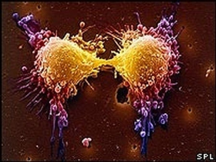 Les cellules du cancer s'alimentent de…