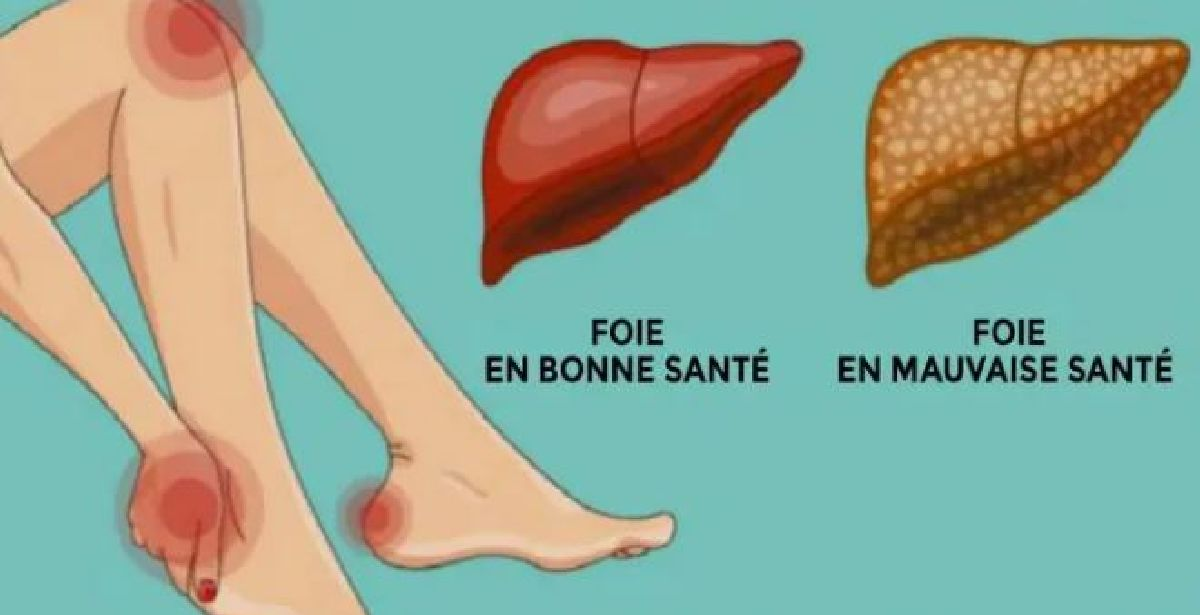 These signs indicate that you need to detoxify the liver!