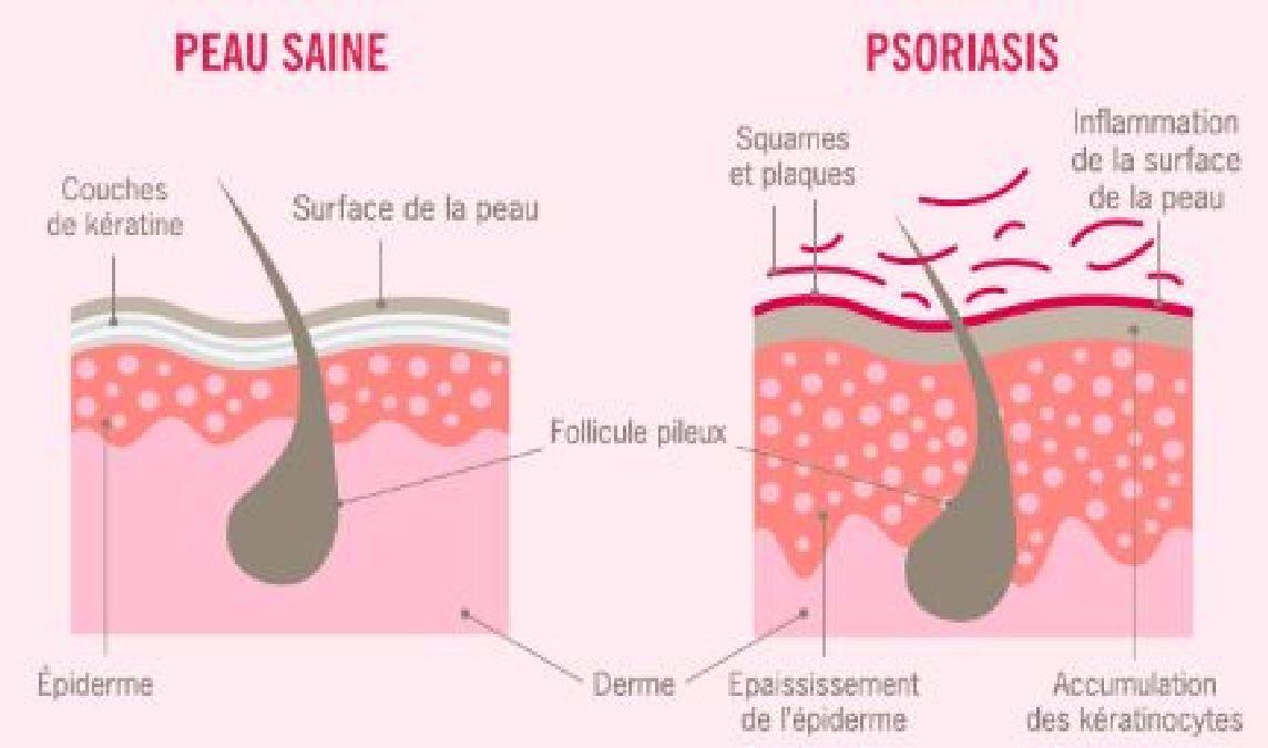 La liste des onguents du psoriasis de la tête