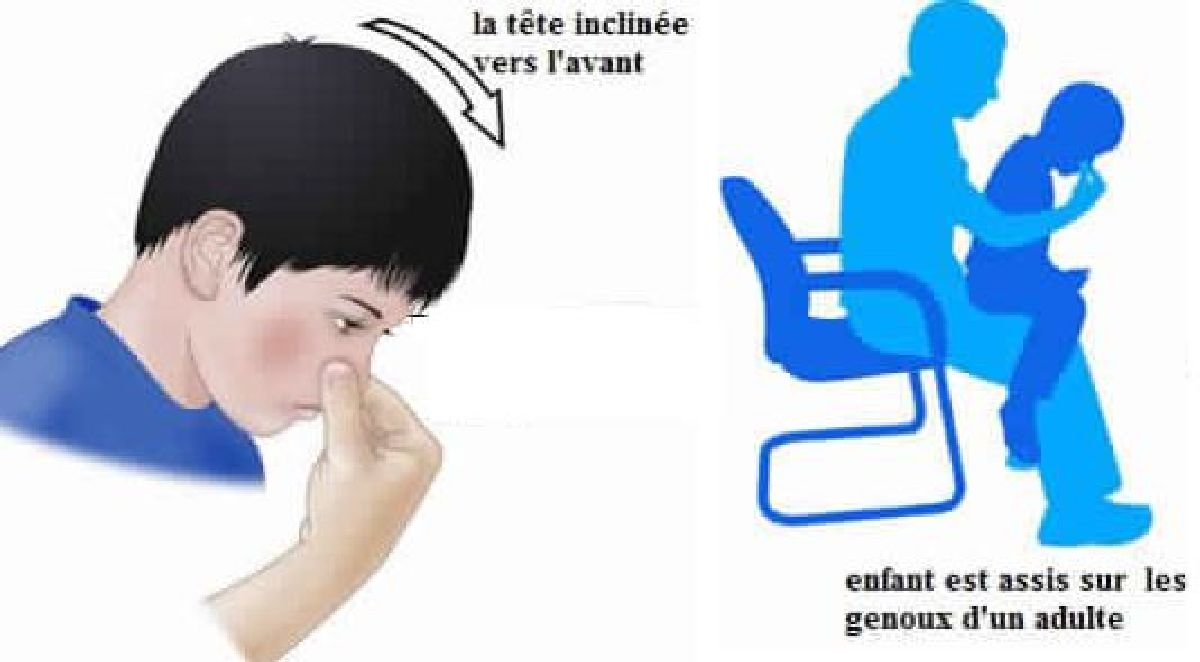 Que faire en cas de saignement du nez for Interieur nez sec