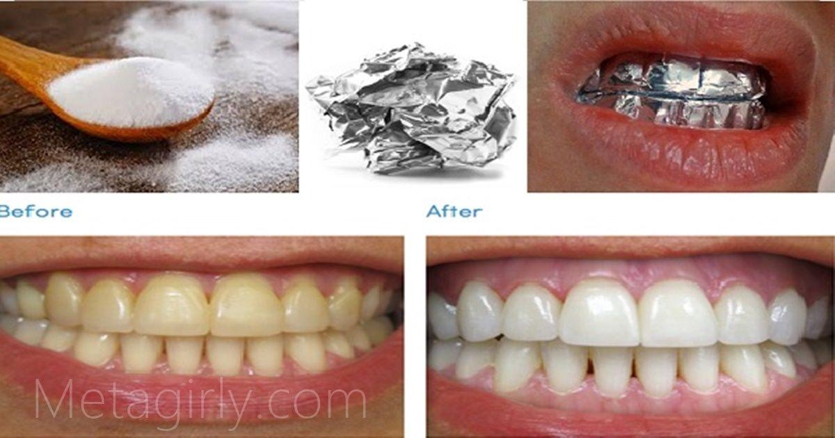 Enveloppez vos dents d'un papier aluminium  pendant 1 heure et observez le résultat :c'est magique !