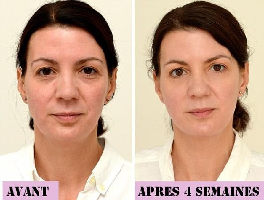 In four weeks, this woman has rejuvenated by ten years. Discover its secret!