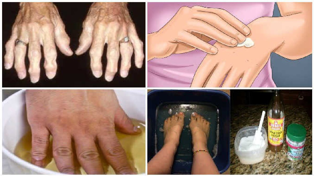 Get rid of joint pain once and for all through natural arthritis remedies.