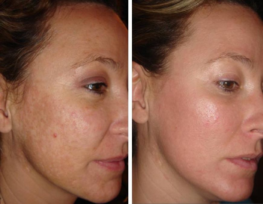 Facial sauna: a well-being treatment to purify the skin