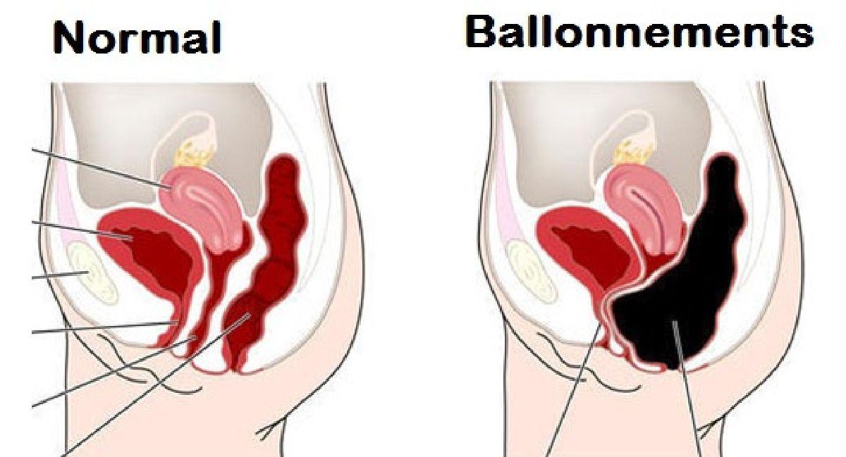 Dites adieu aux ballonnements ! Voici 3 conseils simples pour vous aider à aplatir votre ventre