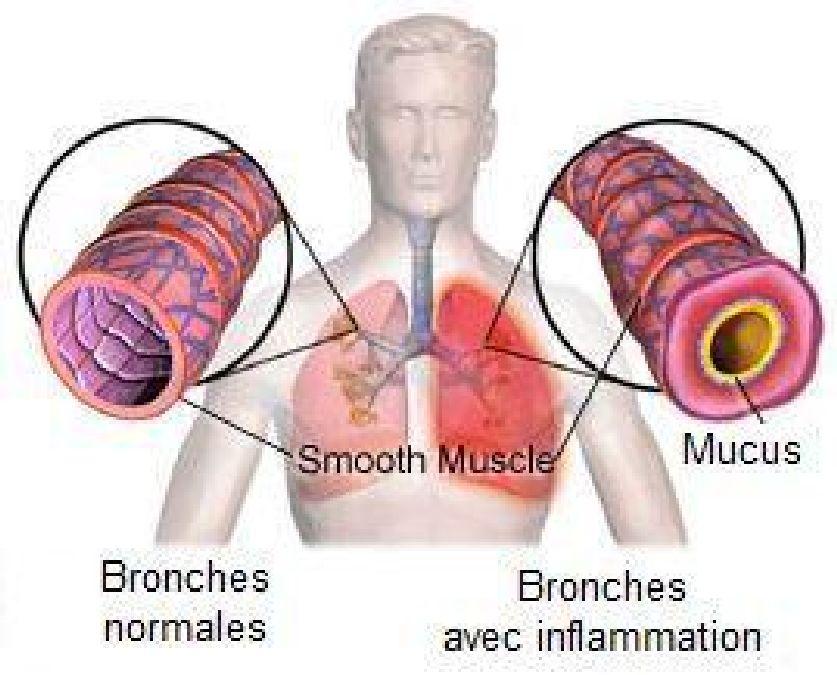 Traitement naturel de la bronchite