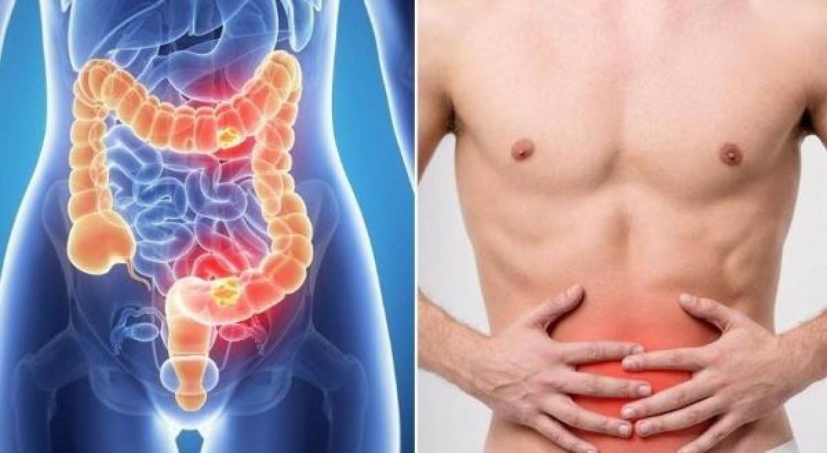 7 Signs Of Colon Cancer You Do not Know