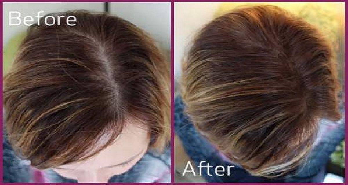 4 moyens naturels pour faire repousser les cheveux en 10 jours. Black Bedroom Furniture Sets. Home Design Ideas