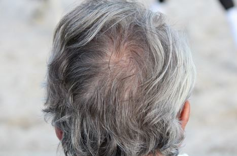 Dites adieu aux cheveux gris : la recette la plus simple à faire à la maison