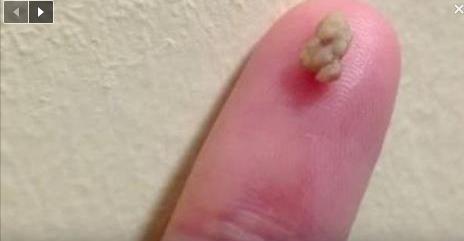 Elle pensait avoir un chewing-gum collé à la gorge…ce que les médecins ont trouvé était effrayant