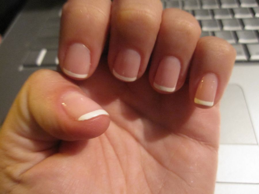 How to allow faster nail growth?