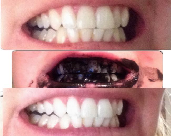 Retrouvez des dents blanches après seulement une semaine grâce à ce seul ingrédient !