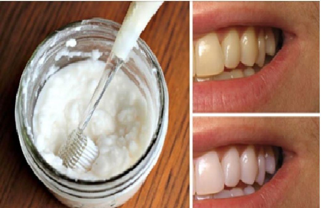 Comment blanchir les dents en 2 minutes grâce à ce remède 100 % naturel et fait maison.