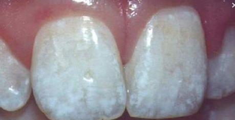 blanc sur les dents