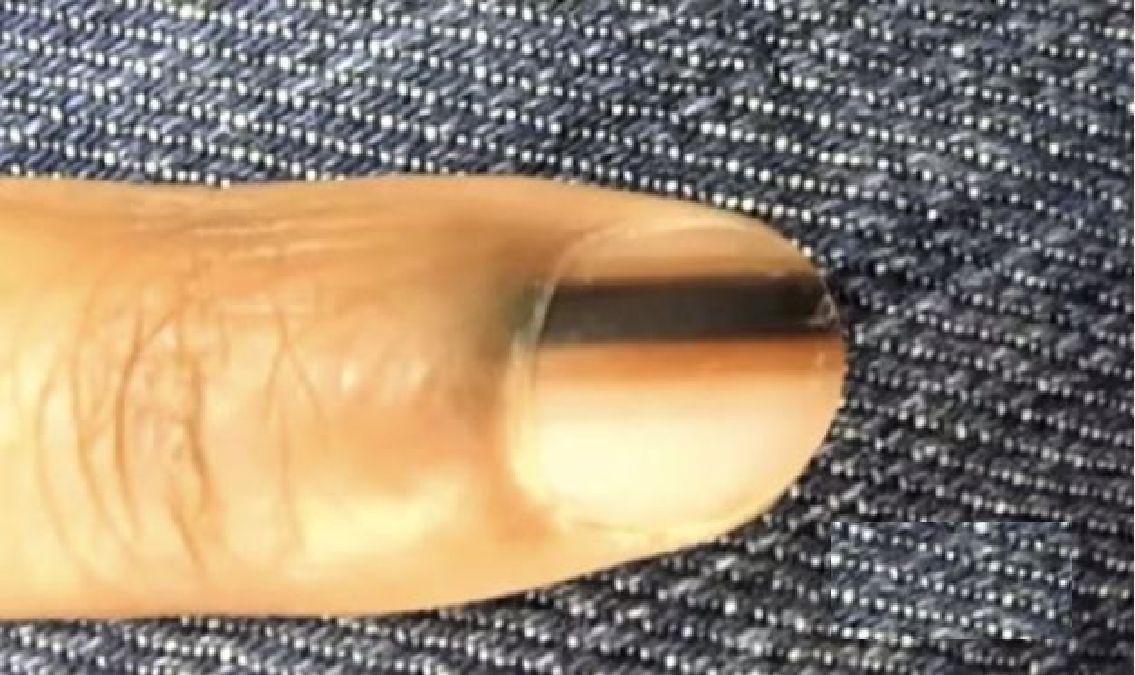 Si vous voyez cette ligne noire sur votre ongle, voici ce que cela signifie!