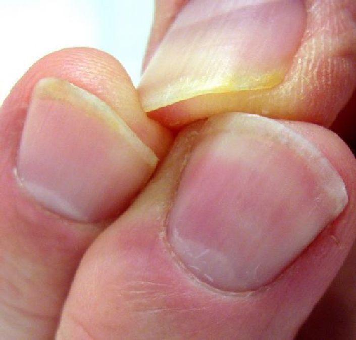 Enlever les traces de nicotine sur les doigts des fumeurs avec du dentifrice