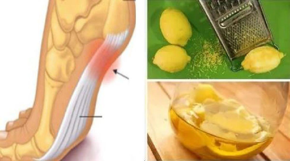 Ce remède naturel vous aidera à apaiser vos douleurs articulaires