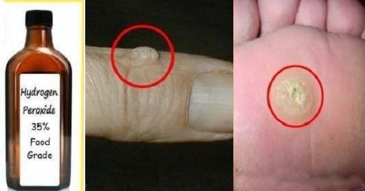Comment faire pour éliminer facilement les verrues de la peau !