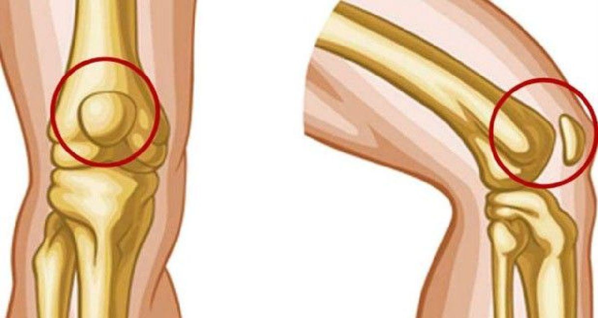 Des exercices efficaces contre les douleurs aux genoux