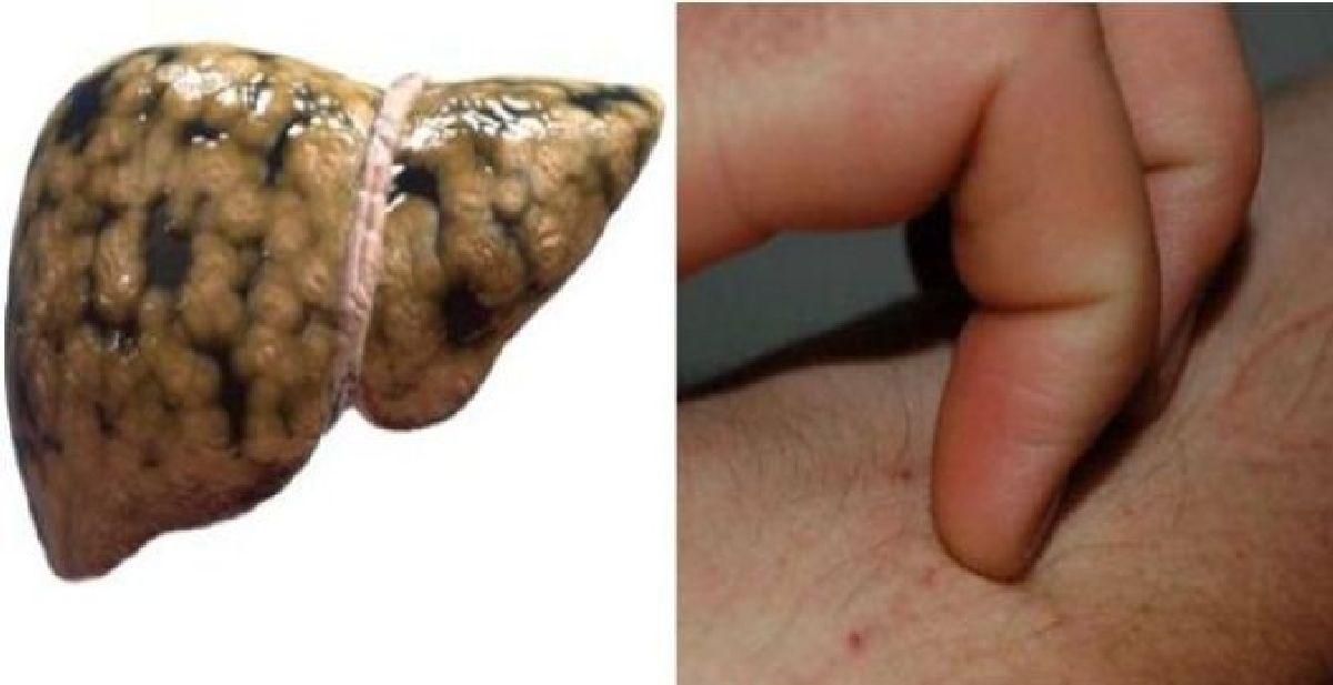 Les signes qui indiquent que vous avez une cirrhose et ce que vous pouvez faire pour y remédier