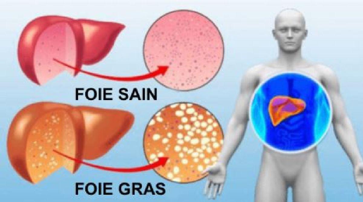 juglans nigra paraziți detoxifierea pielii ce este