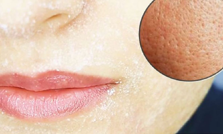 Voici le seul ingrédient dont vous aurez besoin pour réduire vos pores
