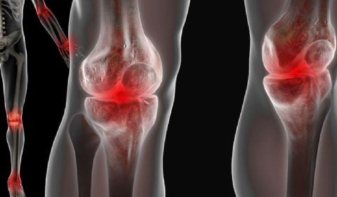 Super Les 18 points douloureux de la fibromyalgie remis en cause QR41