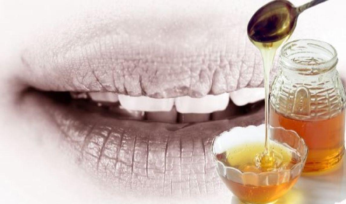 Un remède pour les lèvres gercées et abimées en hiver