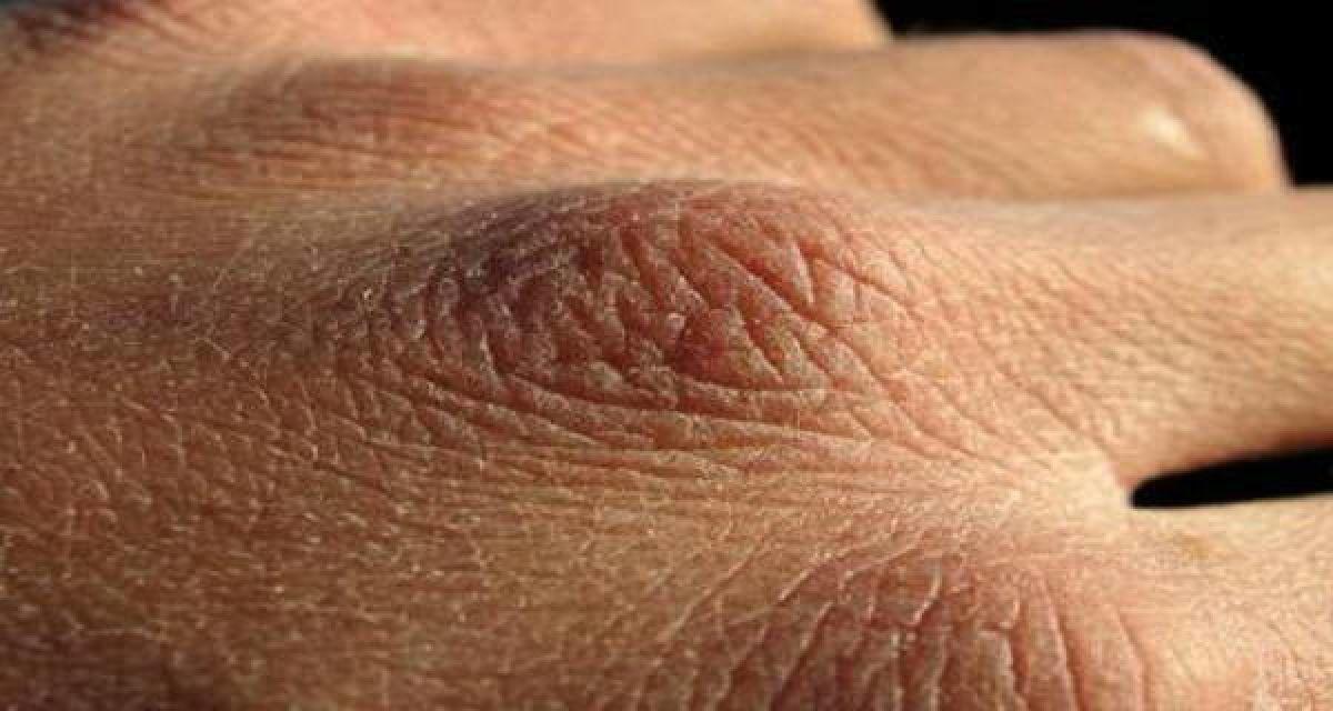 Recette naturelle pour guérir la peau craquelée des mains