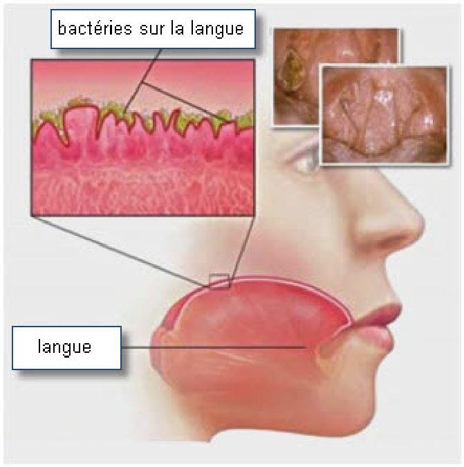 bacterie bouche mauvaise haleine