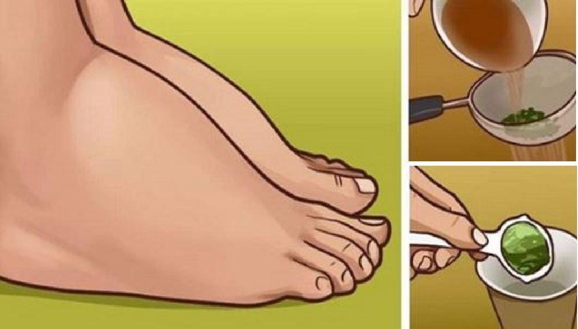 oedeme des chevilles et des pieds