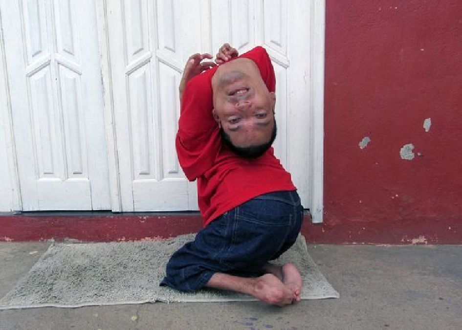 Born with a head in reverse, a Brazilian surmounts his handicap and becomes ..