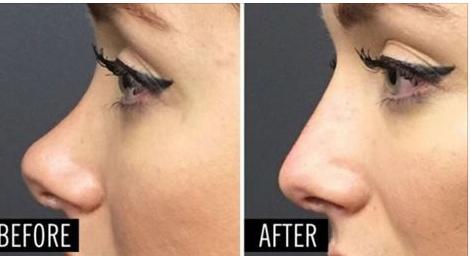 Embellissez l'aspect de votre nez sans chirurgie esthétique ! En seulement 5 minutes vous aurez un tout nouveau nez avec un résultat naturel !