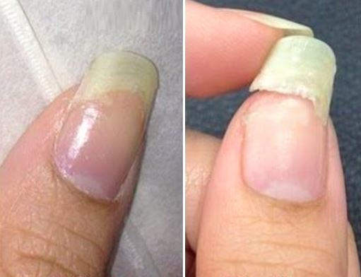 How to Fix a Broken Nail Instantly!