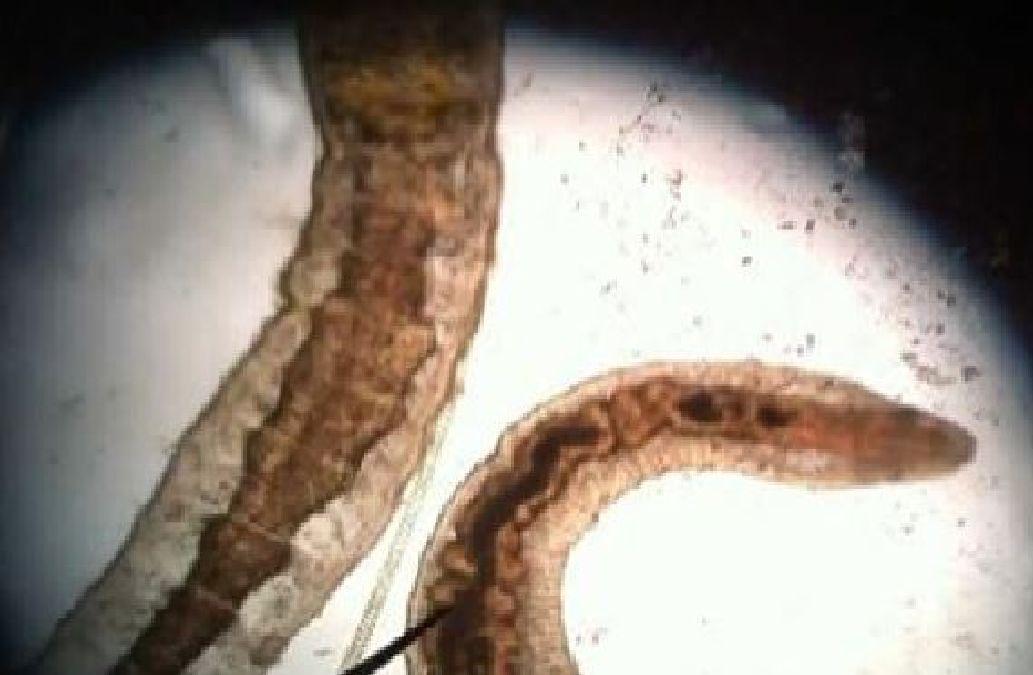 Les nouveaux moyens des parasites les effectifs
