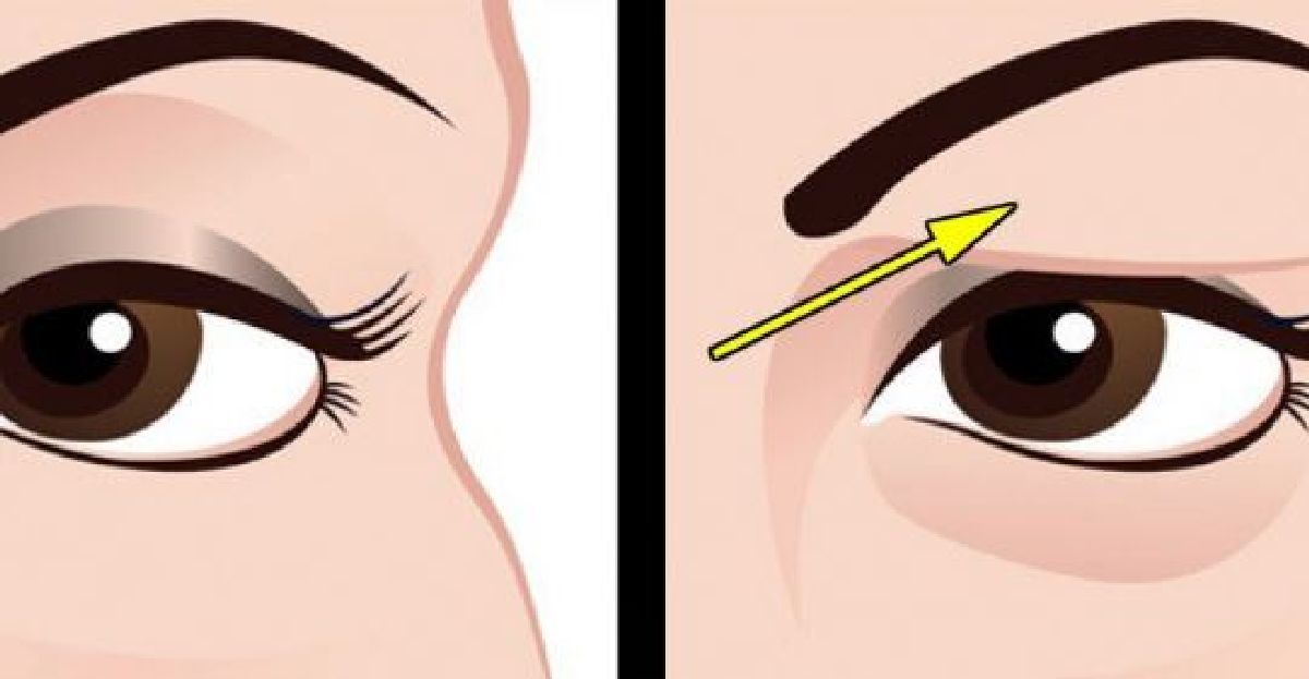 How to remedy your droopy eyelids?