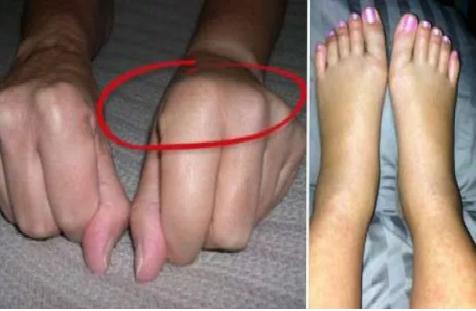 Voici pourquoi certains se réveillent avec les mains et les pieds enflés. Comment y remédier avant qu'il ne soit trop tard!