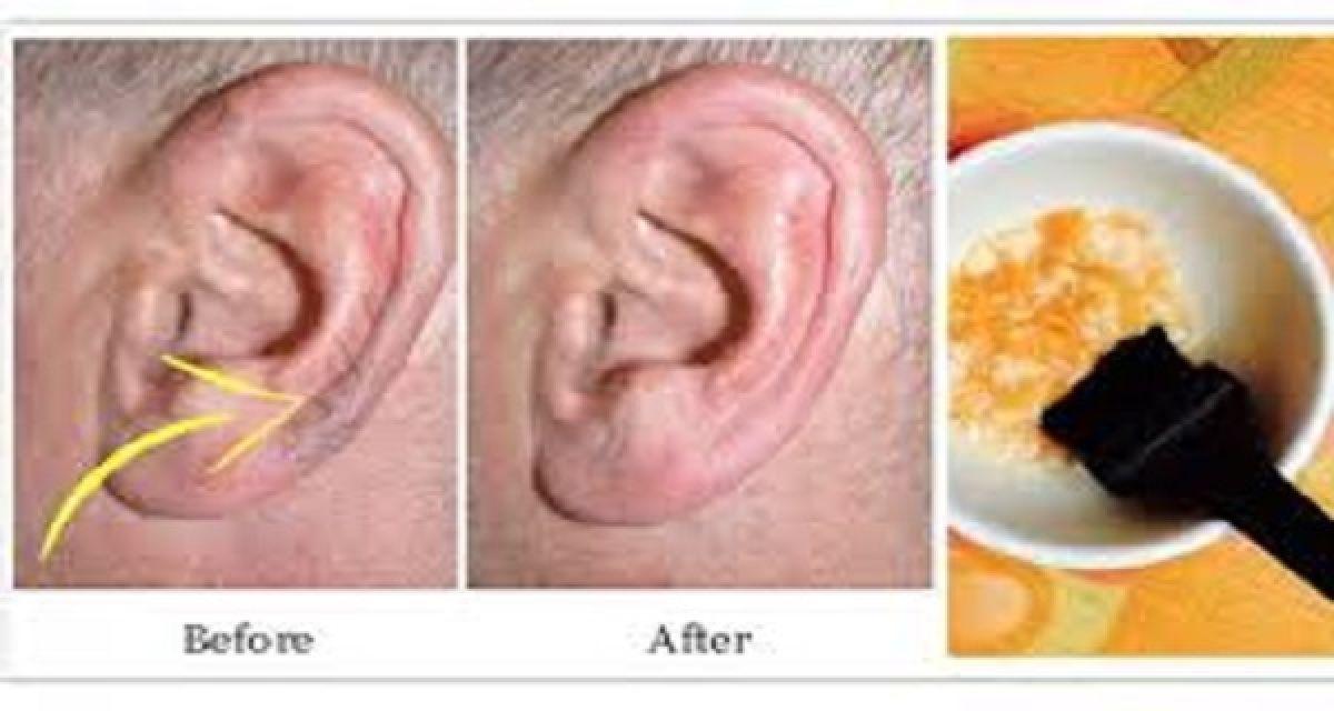 Un remède pour se débarrasser des poils aux oreilles !