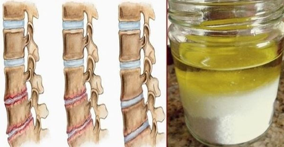 Si vous mélangez ces deux ingrédients, vous n'aurez plus de douleur pour les 5 prochaines années