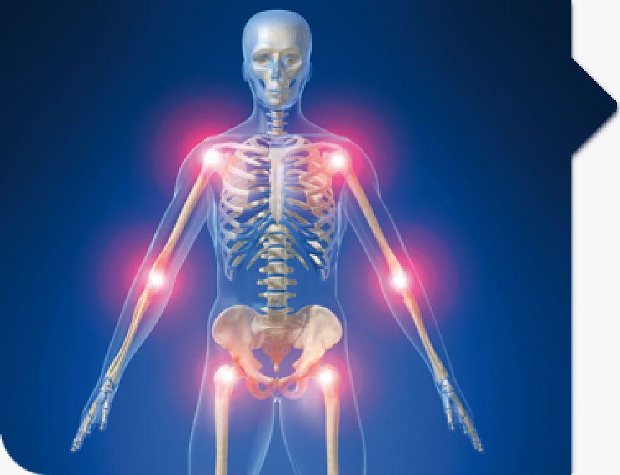 10 Natural Tricks for Rheumatism