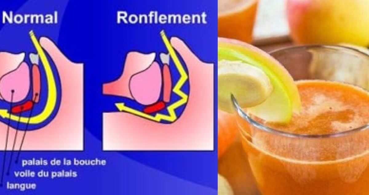 He stopped snoring when his friend showed him this anti-snoring remedy!