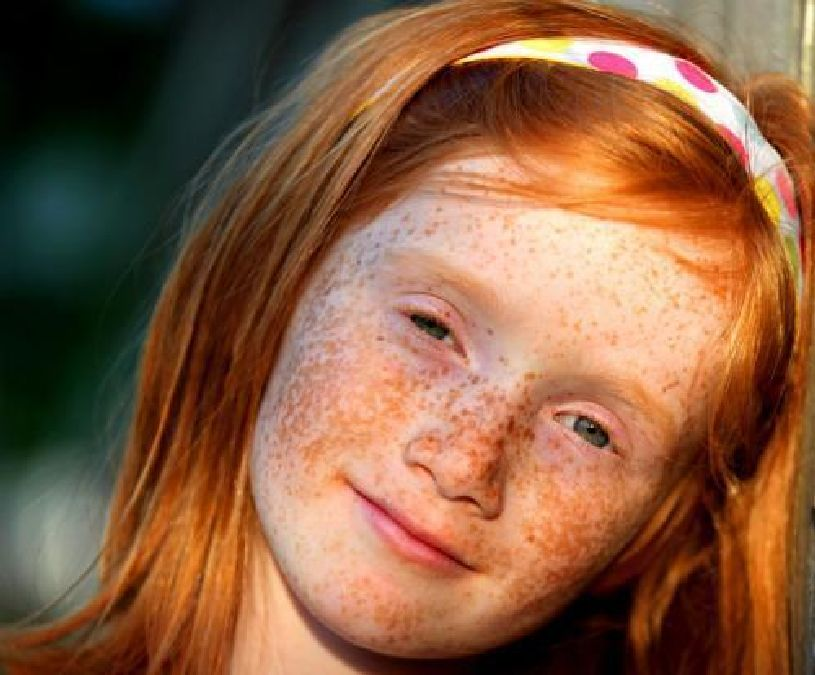 Alert: Redheads are endangered