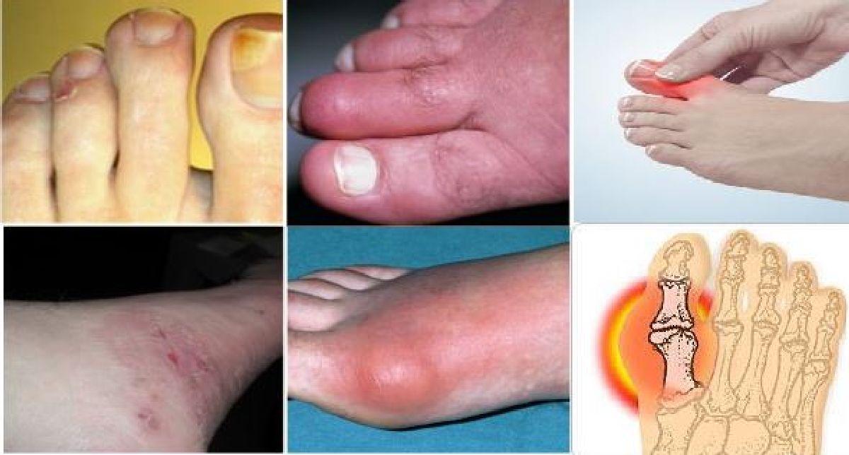Regardez bien vos pieds: ces 10 signes peuvent indiquer un problème de santé grave