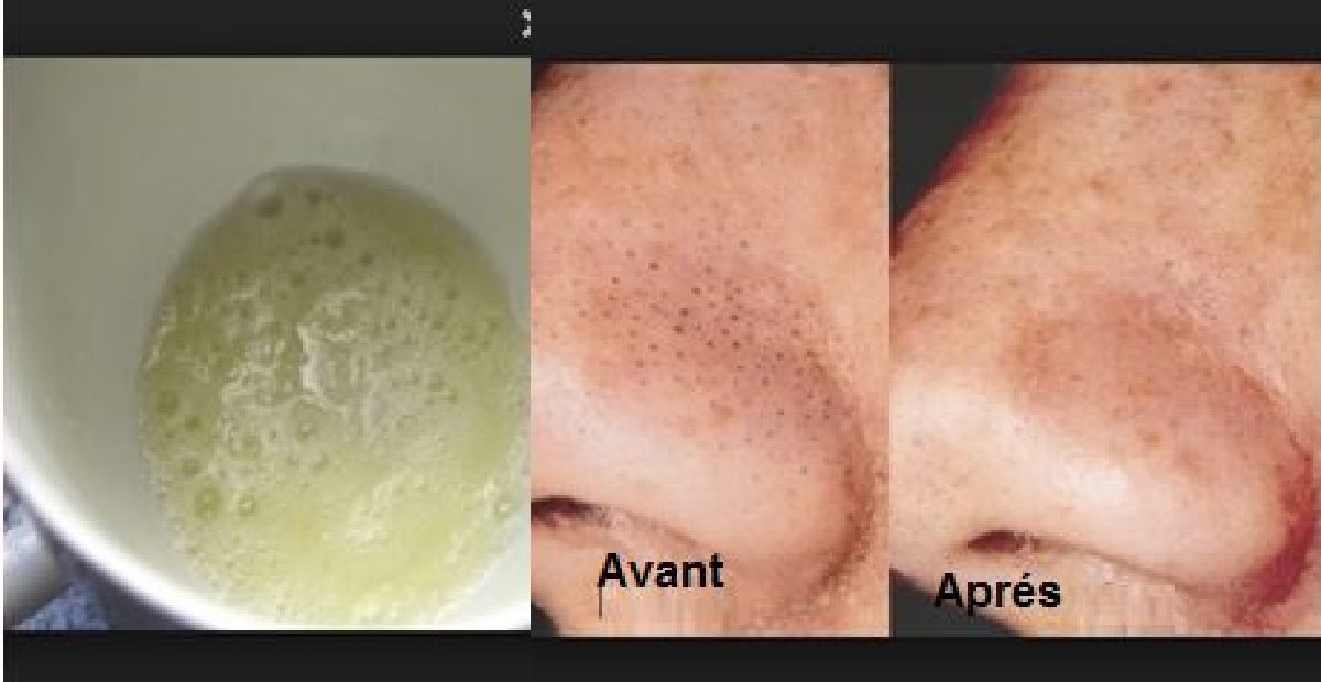how to get rid of pores on your nose permanently