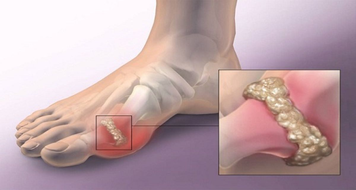 how to stop gout from hurting