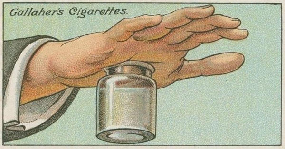 Astuce indolore pour se débarrasser des échardes tenaces dans votre peau en utilisant une bouteille