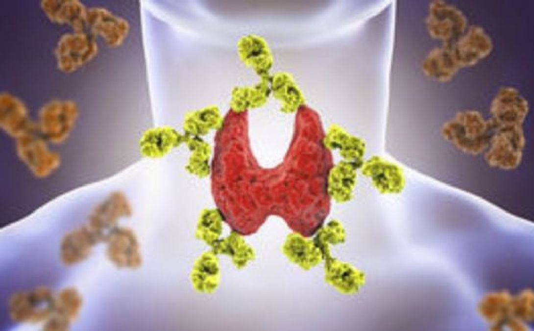 Des chercheurs auraient trouve un lien entre la depression et la thyroidite auto immune