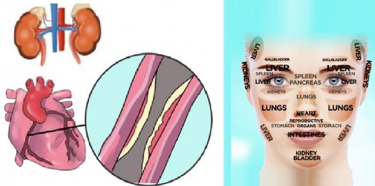 Votre visage peut vous montrer les symptômes de plusieurs maladies !