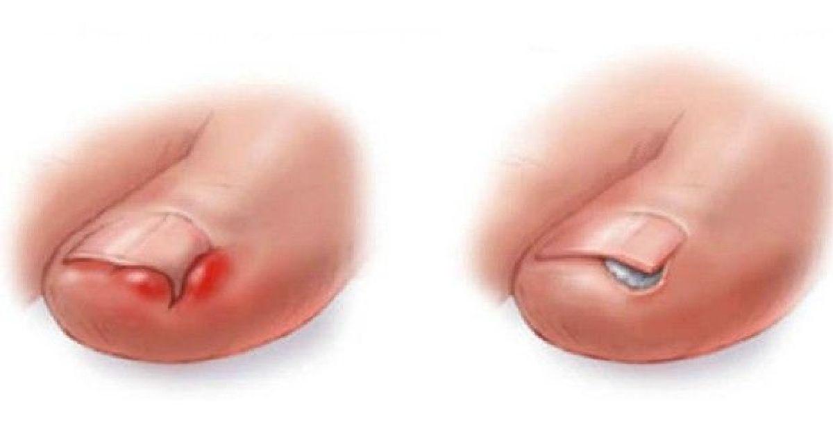 Comment se débarrasser d'un ongle incarné sans opération chirurgicale !